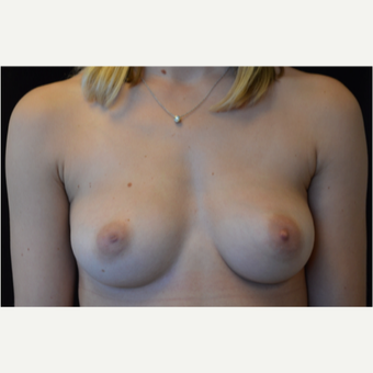 28 year old female with breast augmentation. before 3686938