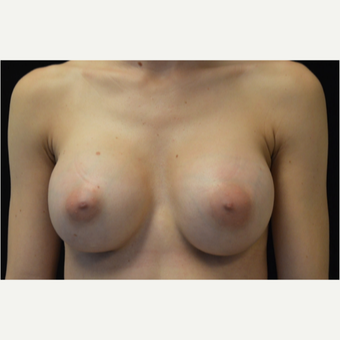 28 year old female with breast augmentation. after 3686938
