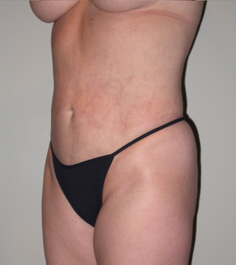 VASER liposelection after 295525