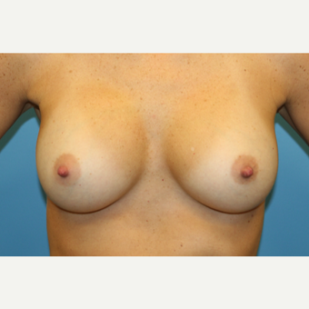 33 year old woman treated with Breast Augmentation after 3482620