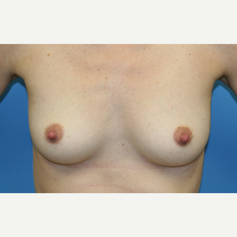 33 year old woman treated with Breast Augmentation before 3482620