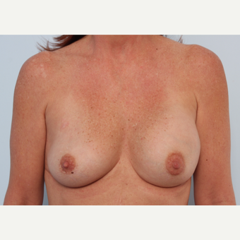 Breast Implant Exchange before 2966015