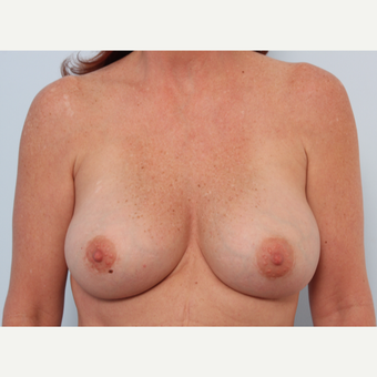 Breast Implant Exchange after 2966015