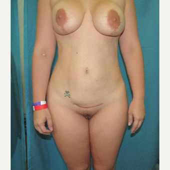 25-34 year old woman treated with Breast Lift with Implants before 3804219