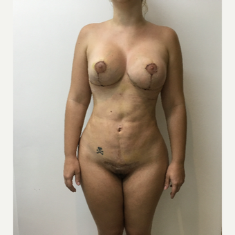 25-34 year old woman treated with Breast Lift with Implants after 3804219
