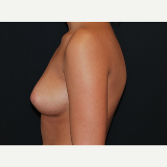 18-24 year old woman treated with Breast Implants before 3650882