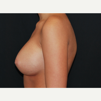 18-24 year old woman treated with Breast Implants after 3650882