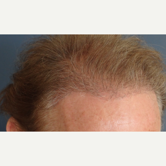 45-54 year old man treated with Hair Transplant after 3065560