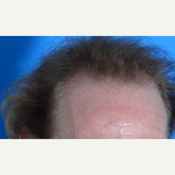 45-54 year old man treated with Hair Transplant before 3065560