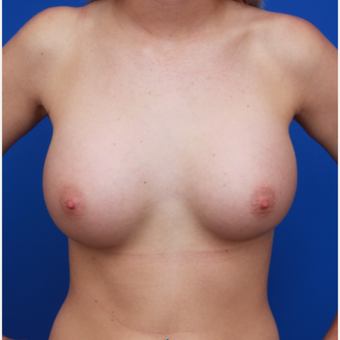 21-year old woman treated with Breast Implants after 3371676