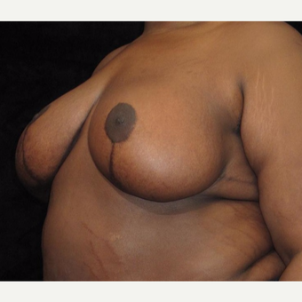 19 year old woman treated with Breast Lift after 3026048