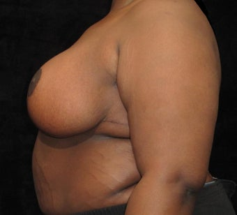 19 year old woman treated with Breast Lift 3026048
