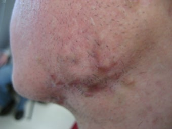 18 year old with severe keloids from Acne after 694592