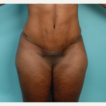 35-44 year old woman treated with Tummy Tuck after 2792183