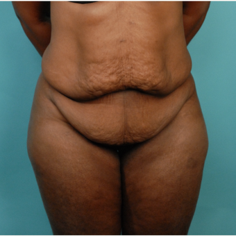 35-44 year old woman treated with Tummy Tuck before 2792183