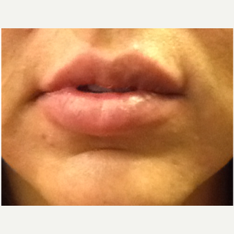 35-44 year old woman treated with Lip Augmentation after 2990431