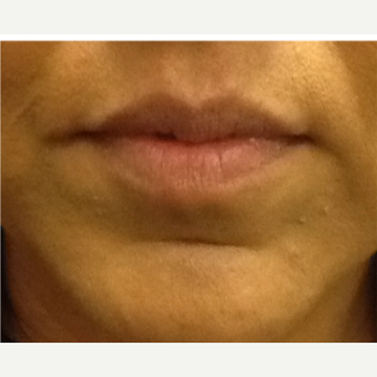 35-44 year old woman treated with Lip Augmentation before 2990431