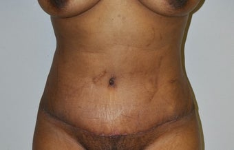 35-44 year old woman treated with Tummy Tuck after 2671951