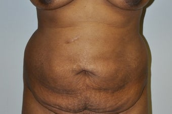 35-44 year old woman treated with Tummy Tuck before 2671951