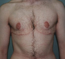 38-Year-Old Male Breast Reduction after 668354