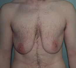 38-Year-Old Male Breast Reduction before 668354