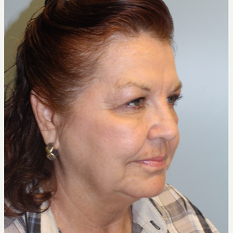 55-64 year old woman treated with Facelift before 3609932