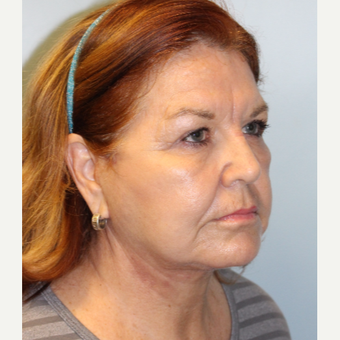 55-64 year old woman treated with Facelift after 3609932