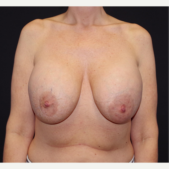 35-44 year old woman treated with Breast Implant Removal before 3741640