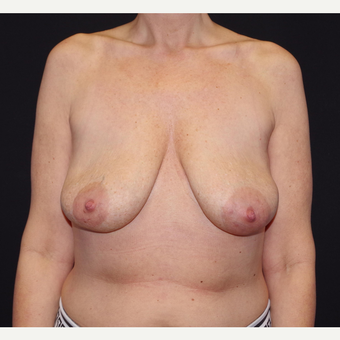 35-44 year old woman treated with Breast Implant Removal after 3741640