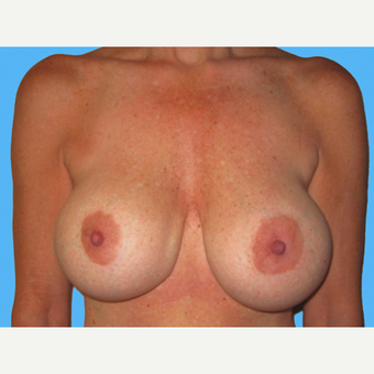 Breast Implant Removal before 3809798
