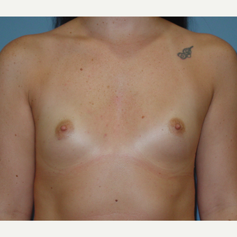 25-34 year old woman treated with Breast Augmentation before 3136223