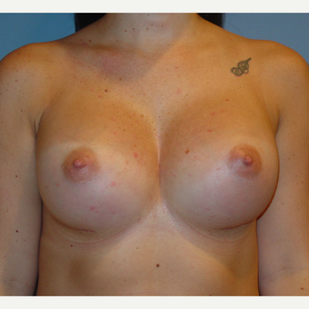 25-34 year old woman treated with Breast Augmentation after 3136223