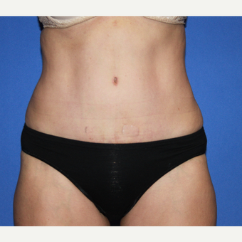 55-64 year old woman treated with Tummy Tuck after 3610294
