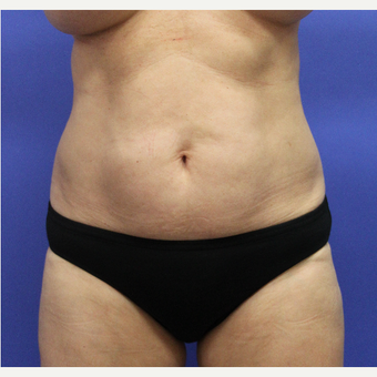 55-64 year old woman treated with Tummy Tuck before 3610294