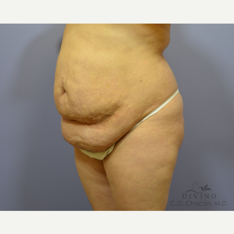 35-44 year old woman treated with Tummy Tuck before 3415766