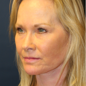 55-64 year old woman treated with Facelift after 3554111