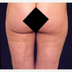 35 Year Old Female Liposuction Inner and Outer Thighs after 3093974