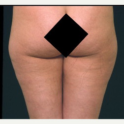 35 Year Old Female Liposuction Inner and Outer Thighs before 3093974