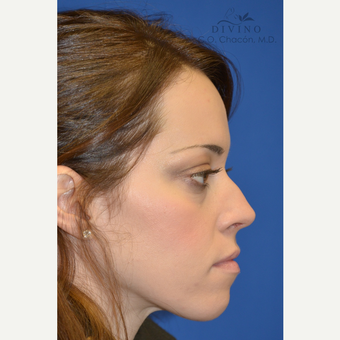 25-34 year old woman treated with Cheek Augmentation before 3421917