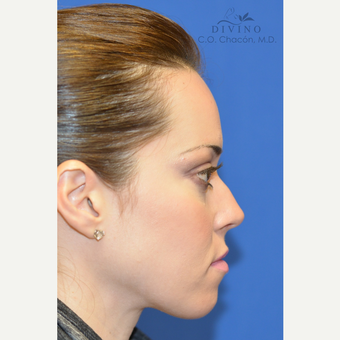 25-34 year old woman treated with Cheek Augmentation after 3421917