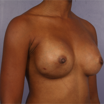 25-34 year old woman treated with Breast Reconstruction after 3226978