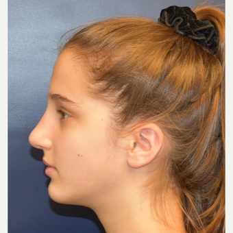 17 or under year old woman treated with Nose Surgery after 3305998