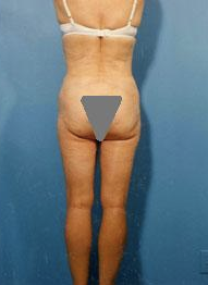 Buttocks Enhancement after 296683