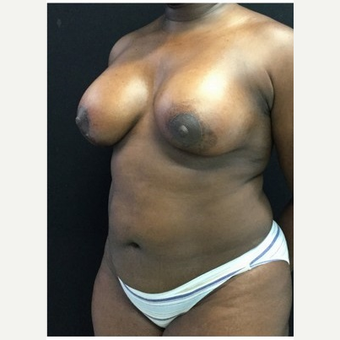 35-44 year old woman treated with Breast Lift with Implants after 3219410