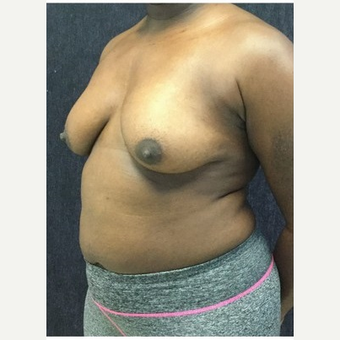 35-44 year old woman treated with Breast Lift with Implants before 3219410