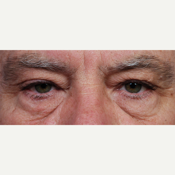 55-64 year old man treated with Eyelid Surgery before 3453941