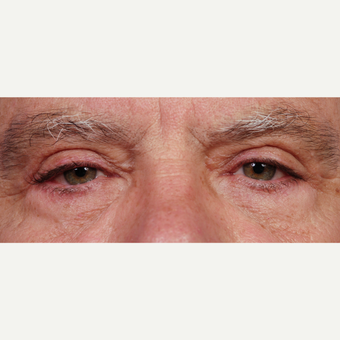 55-64 year old man treated with Eyelid Surgery after 3453941