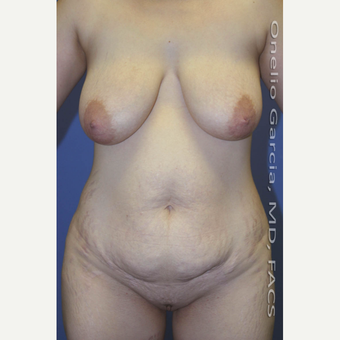 35-44 year old woman treated with Mommy Makeover before 3010199