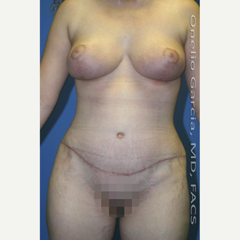 35-44 year old woman treated with Mommy Makeover after 3010199