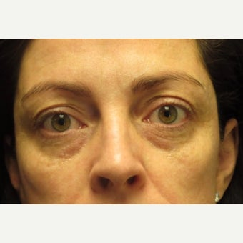 Non-Surgical Cheek Augmentation With Juvederm Dermal Filler And Subtle Brow Lift With Botox